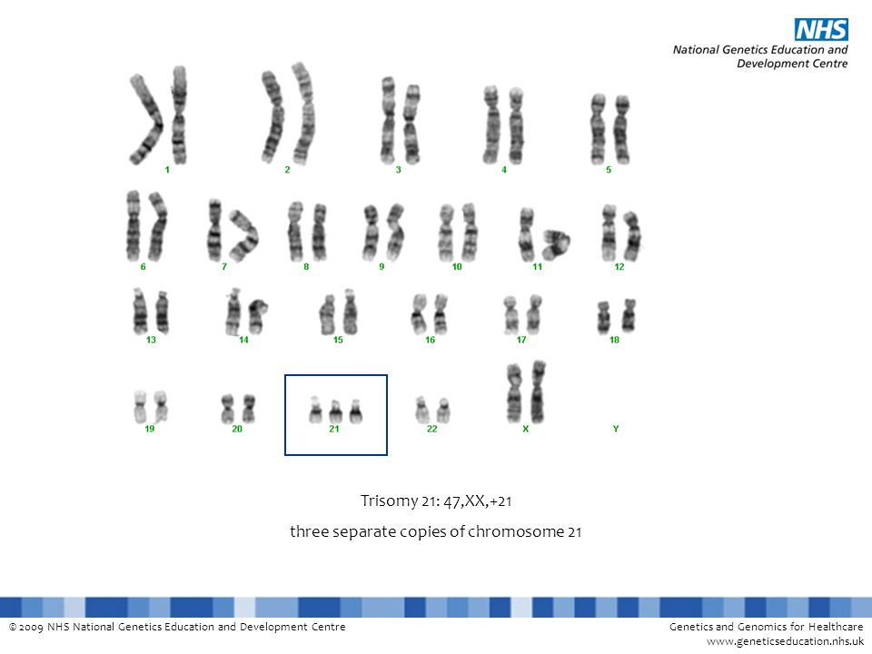 three separate copies of chromosome 21
