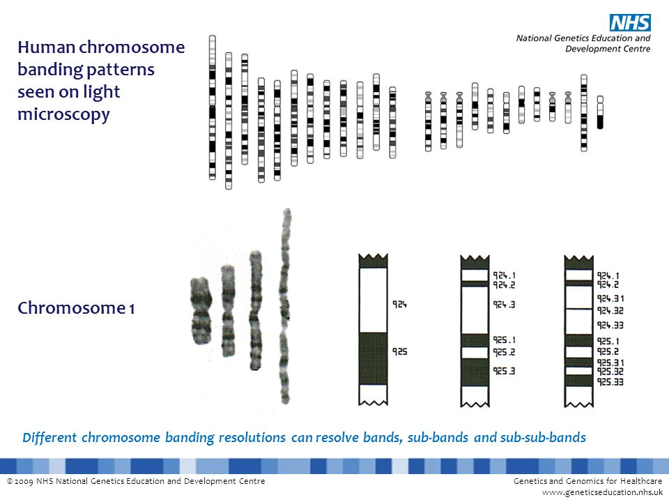 Human chromosome banding patterns seen on light microscopy