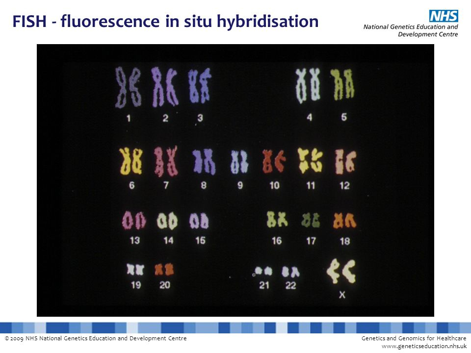 FISH - fluorescence in situ hybridisation