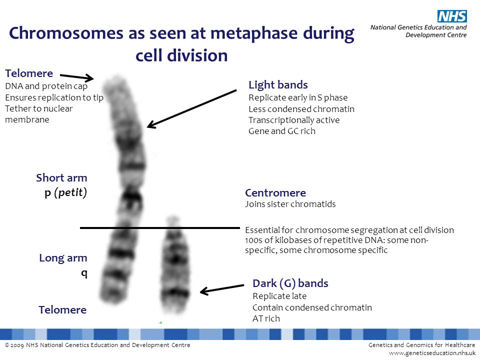 Chromosomes as seen at metaphase during cell division
