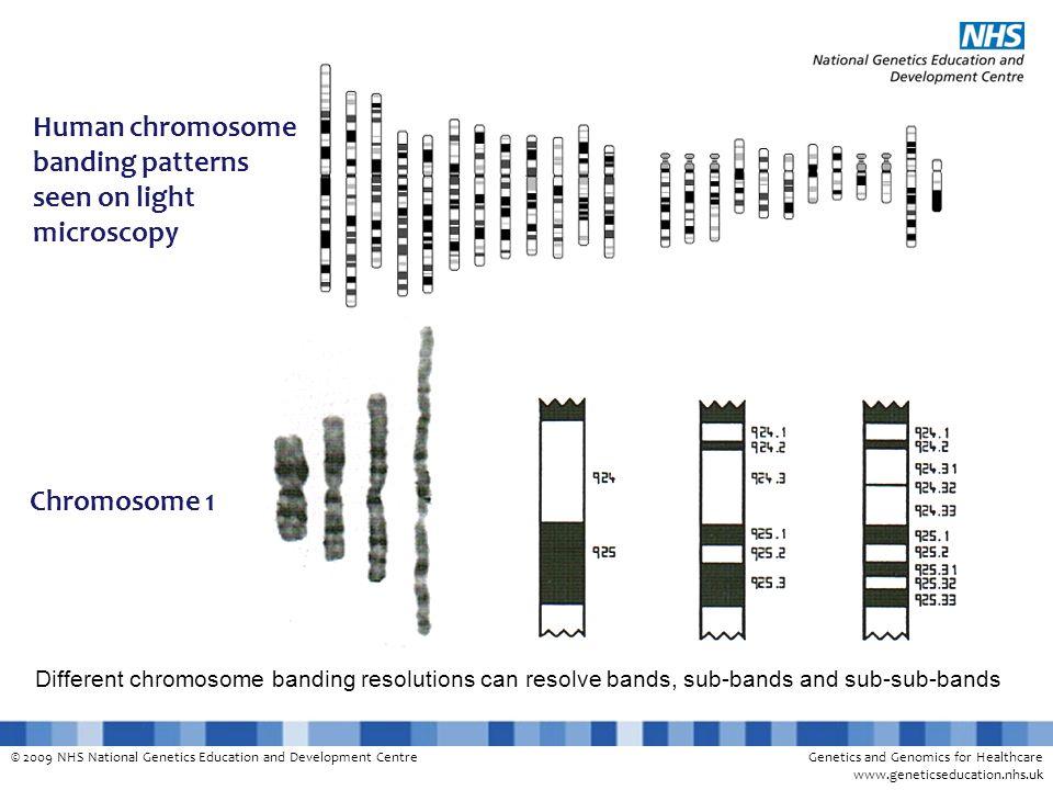 Human chromosome banding patterns seen on light microscopy