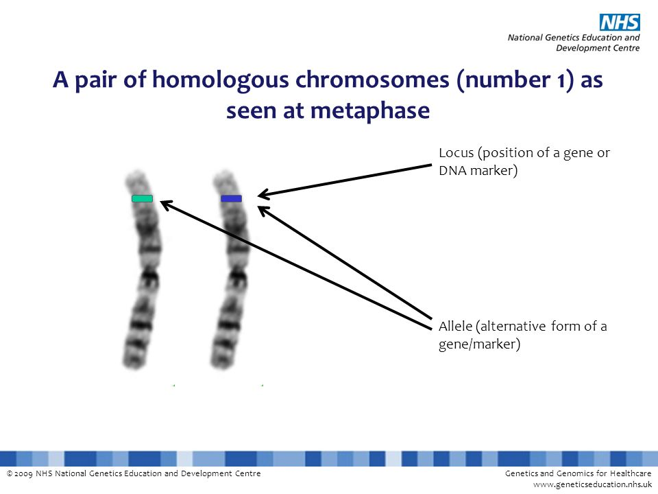 A pair of homologous chromosomes (number 1) as seen at metaphase