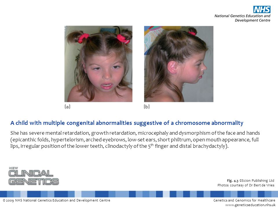 A child with multiple congenital abnormalities suggestive of a chromosome abnormality