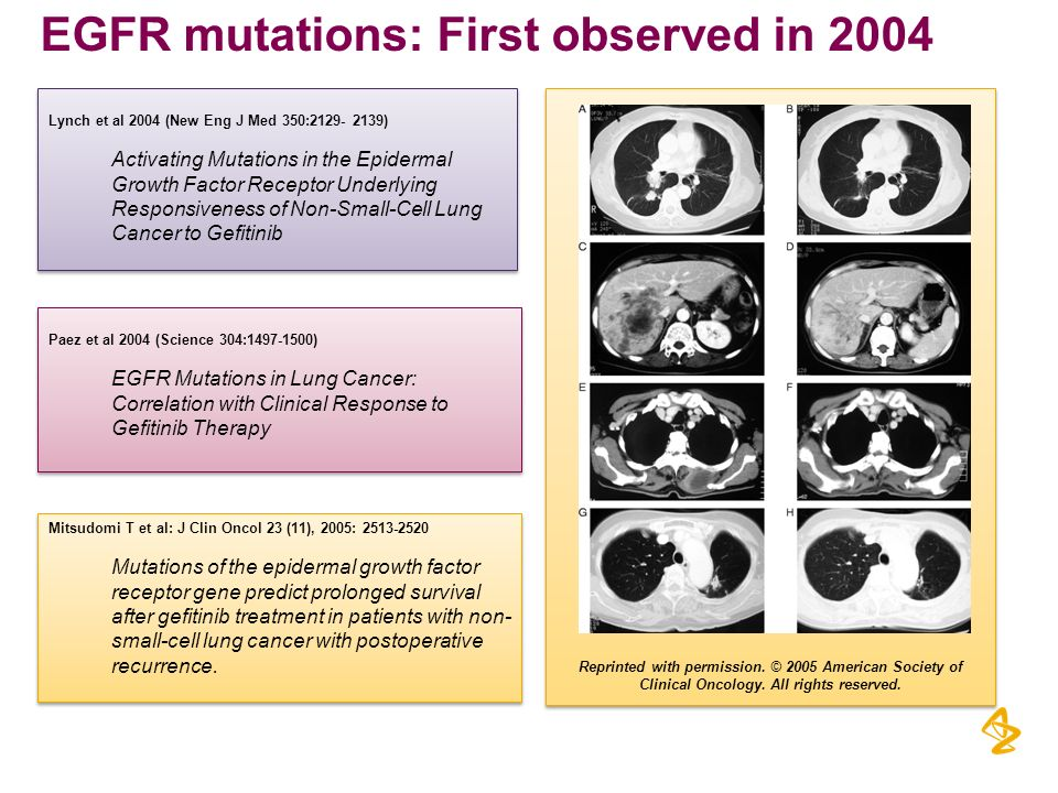 EGFR mutations: First observed in 2004
