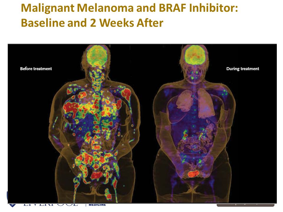 Malignant Melanoma and BRAF Inhibitor: Baseline and 2 Weeks After