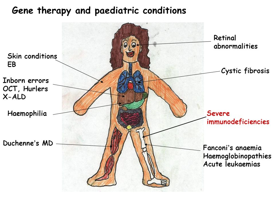 Gene therapy and paediatric conditions