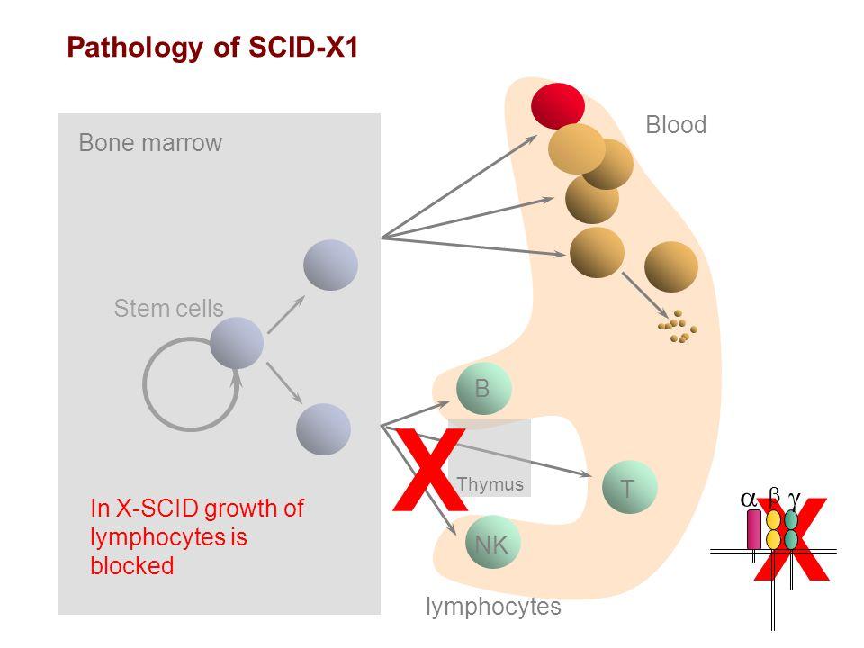 X Pathology of SCID-X1 a g Blood Bone marrow Stem cells B T b