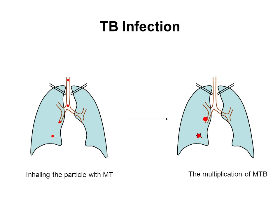 TB Infection Inhaling the particle with MT The multiplication of MTB