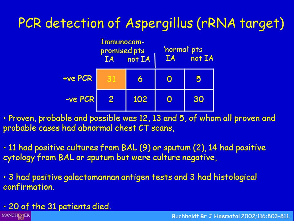 PCR detection of Aspergillus (rRNA target)