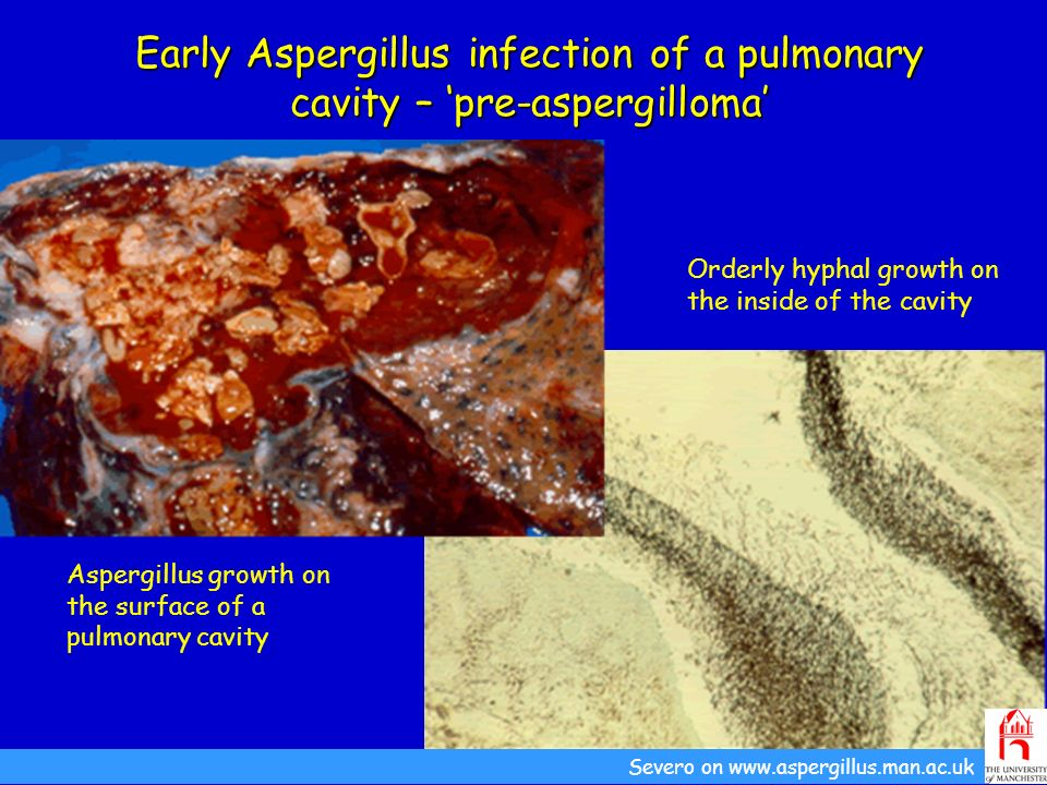 Early Aspergillus infection of a pulmonary cavity – 'pre-aspergilloma'