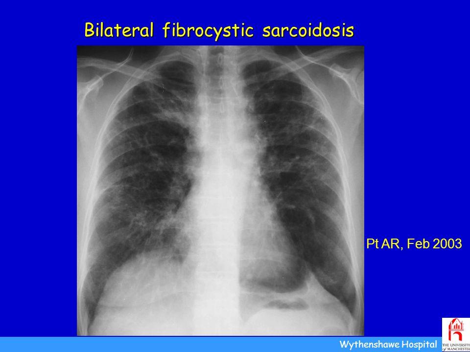 Bilateral fibrocystic sarcoidosis