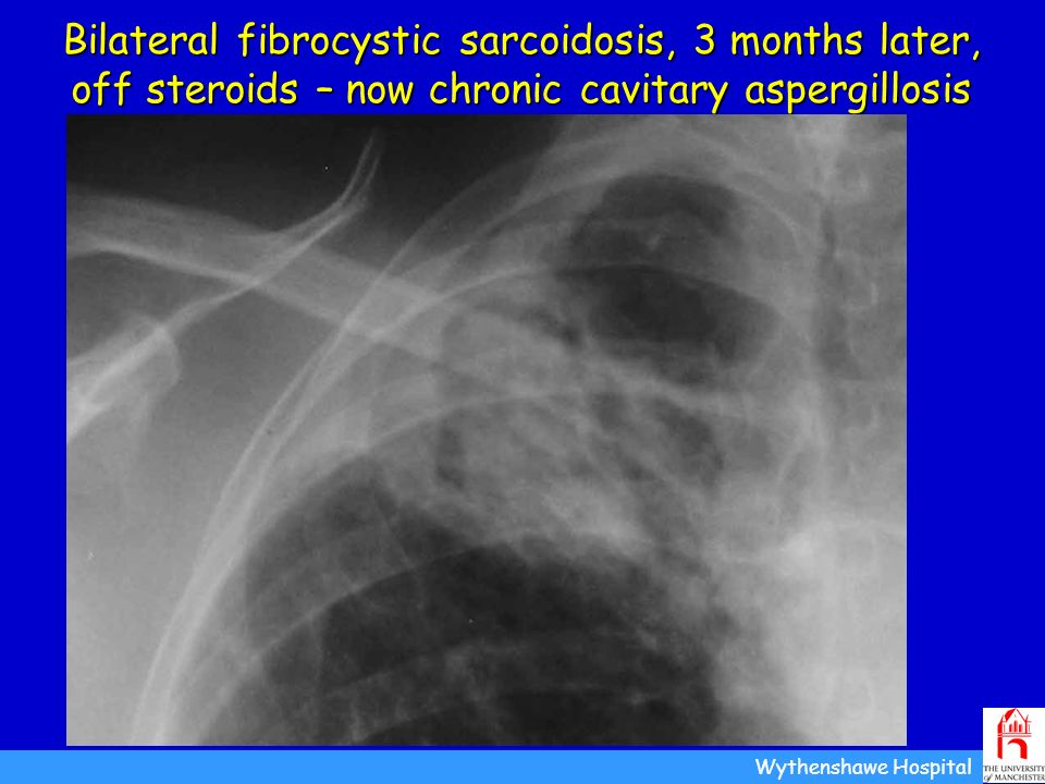 Bilateral fibrocystic sarcoidosis, 3 months later, off steroids – now chronic cavitary aspergillosis