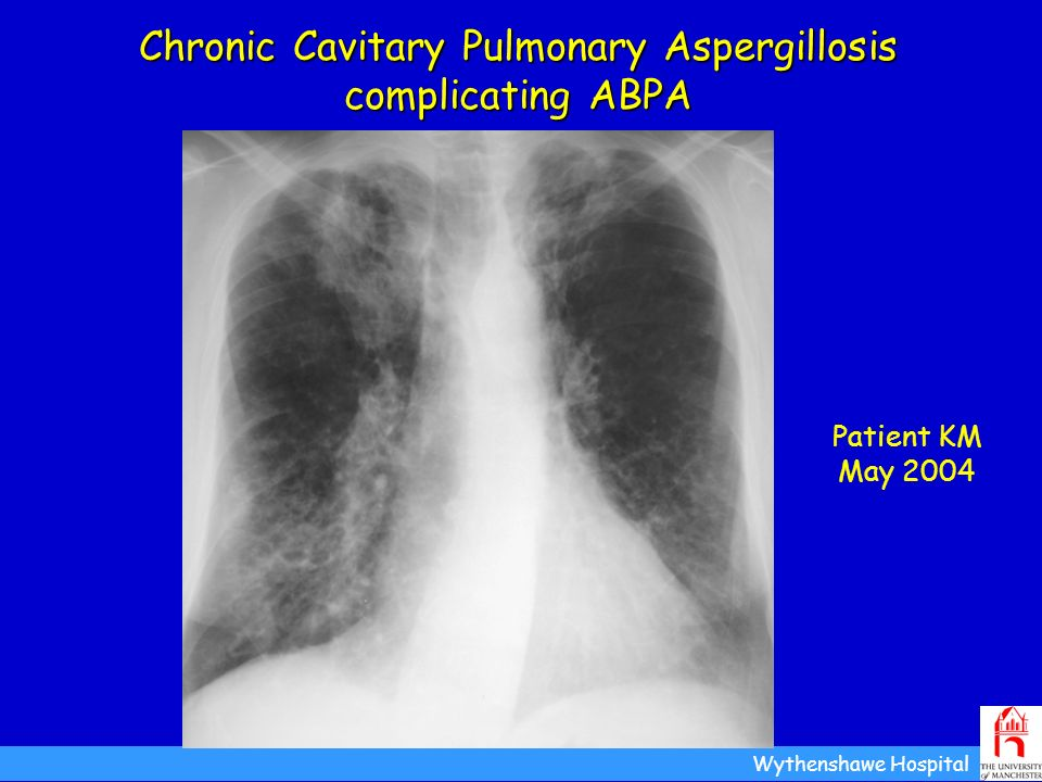 Chronic Cavitary Pulmonary Aspergillosis complicating ABPA