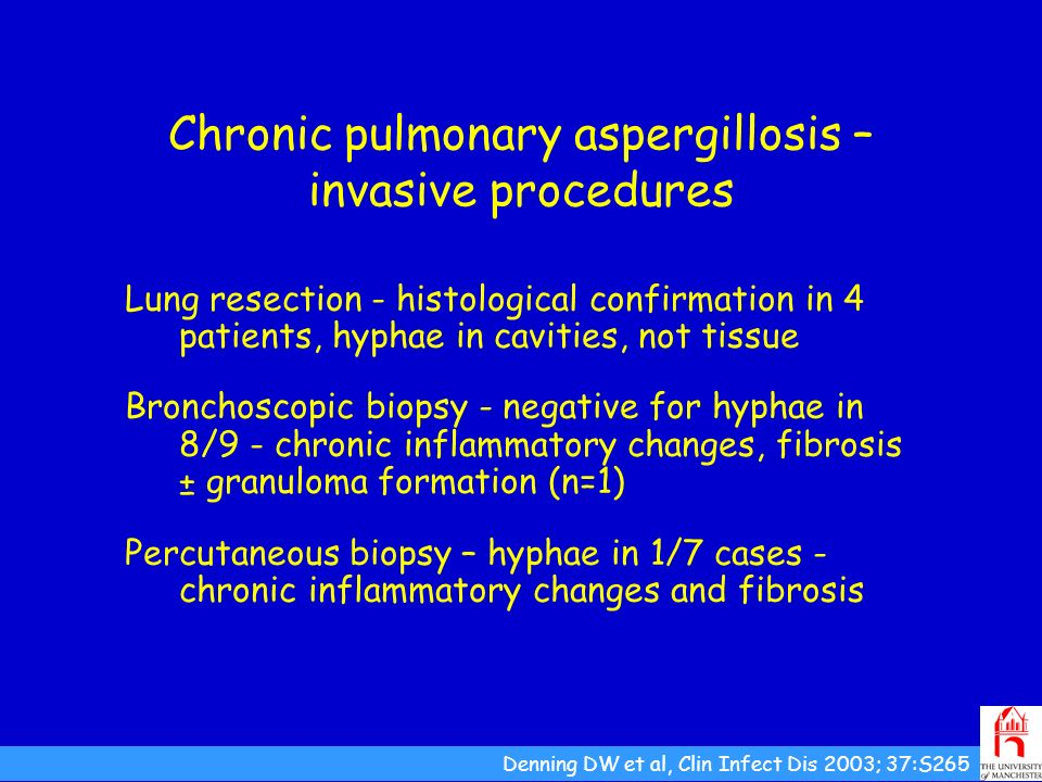 Chronic pulmonary aspergillosis – invasive procedures