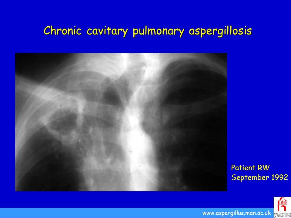 Chronic cavitary pulmonary aspergillosis