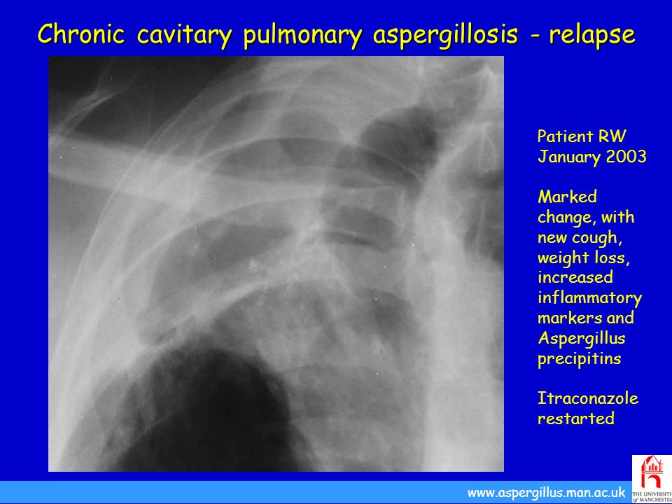 Chronic cavitary pulmonary aspergillosis - relapse