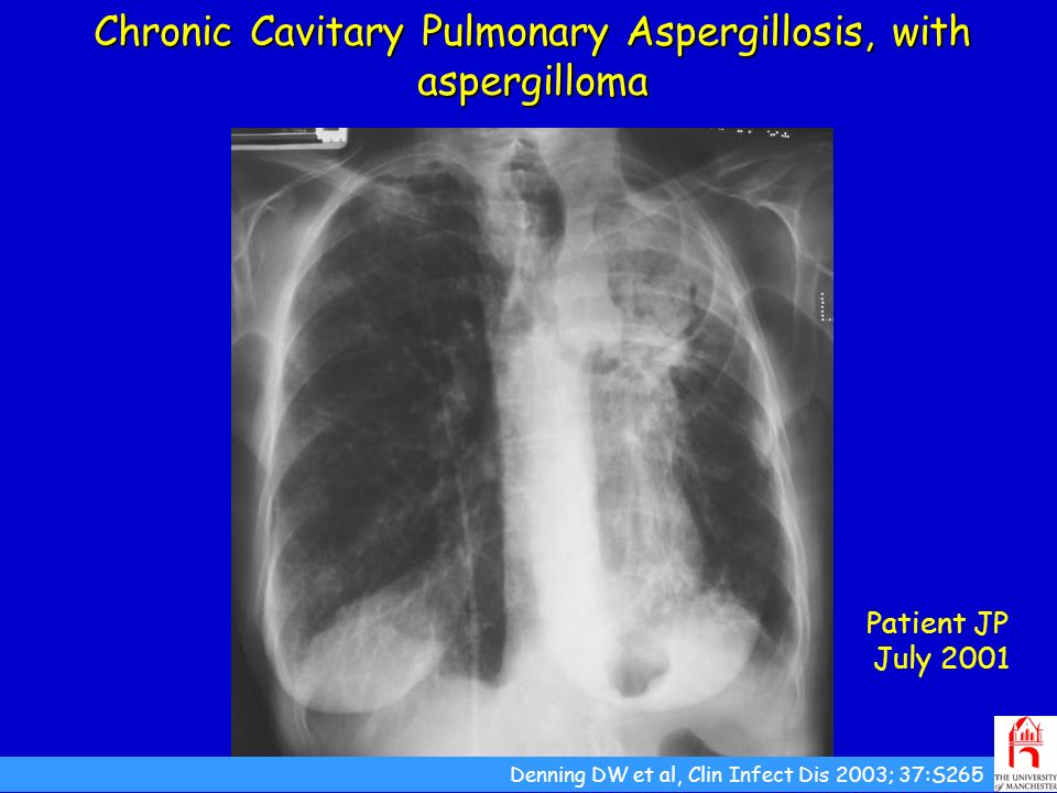 Chronic Cavitary Pulmonary Aspergillosis, with aspergilloma