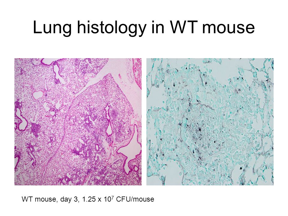 Lung histology in WT mouse