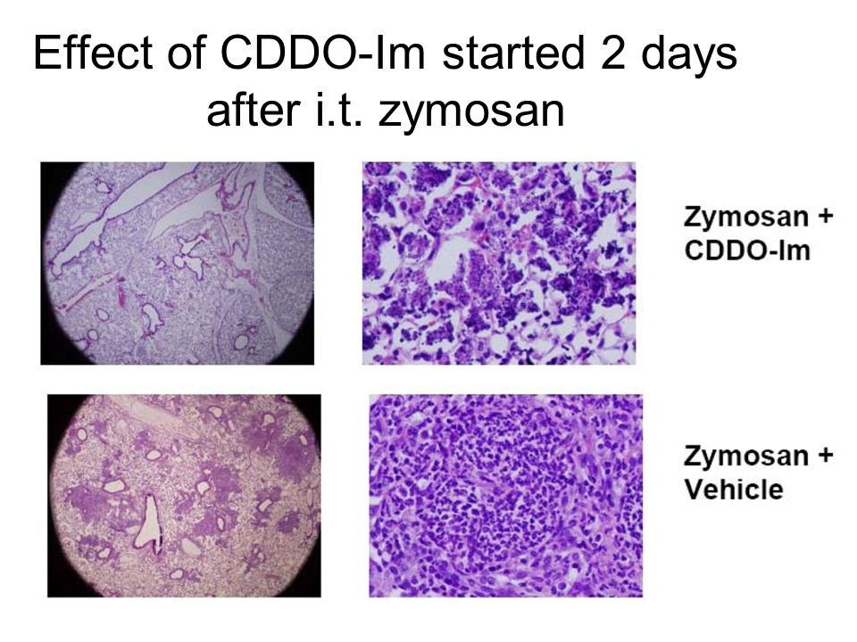 Effect of CDDO-Im started 2 days after i.t. zymosan