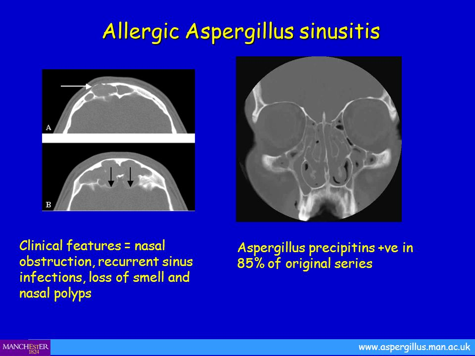 Allergic Aspergillus sinusitis