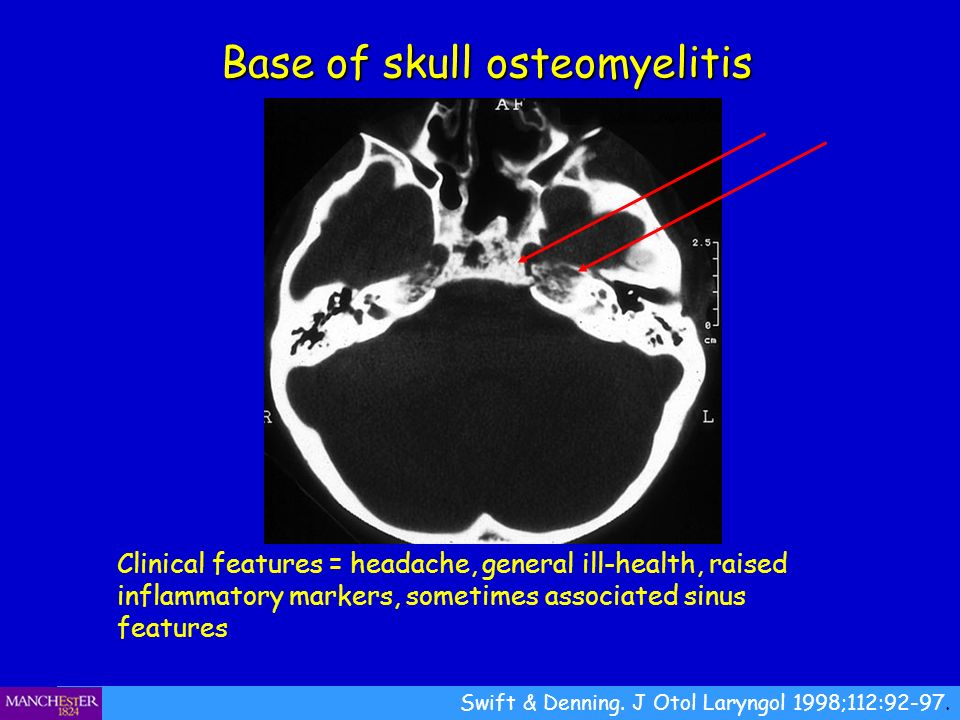 Base of skull osteomyelitis