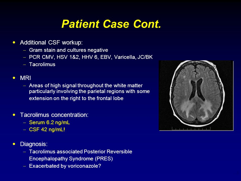 Patient Case Cont. Additional CSF workup: MRI