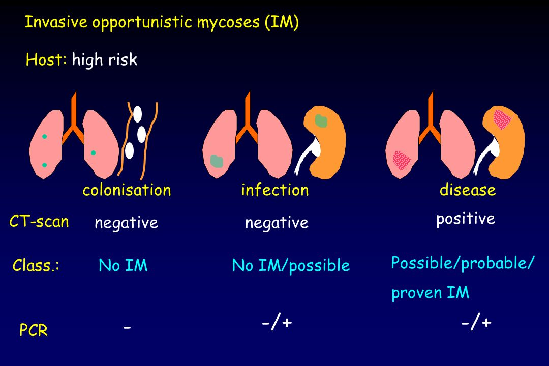 -/+ -/+ - Invasive opportunistic mycoses (IM) Host: high risk