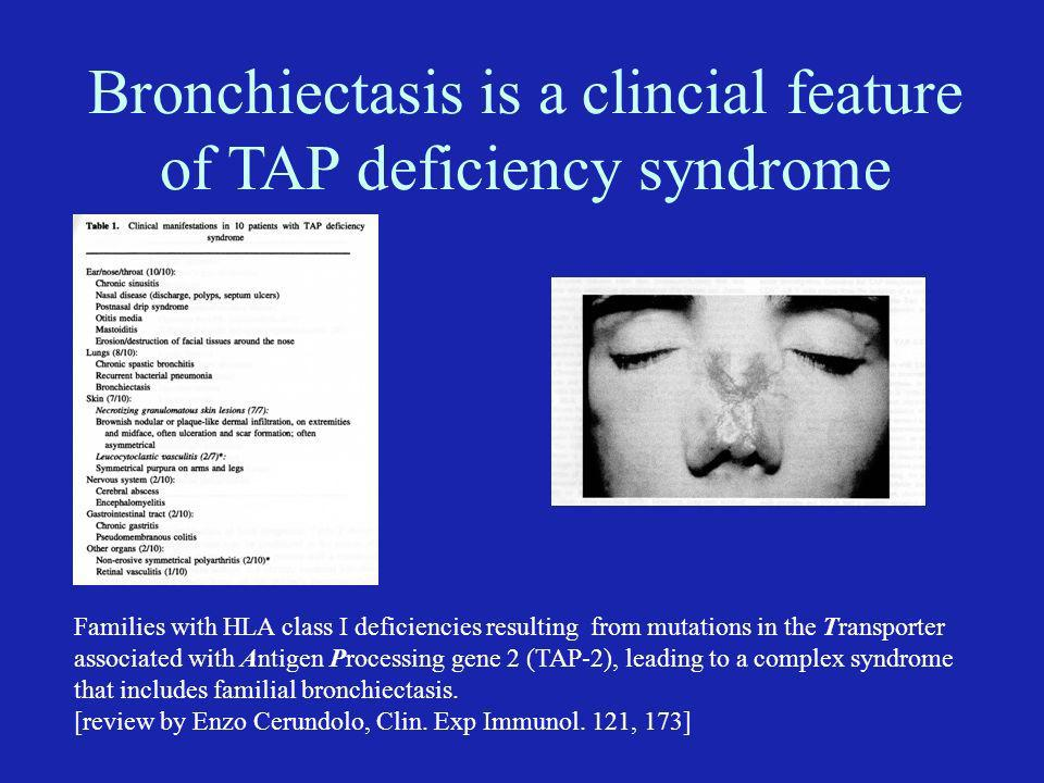 Bronchiectasis is a clincial feature of TAP deficiency syndrome