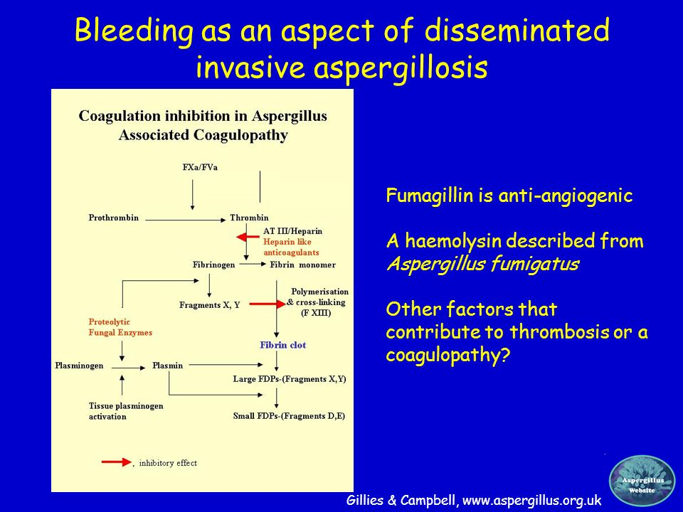 Bleeding as an aspect of disseminated invasive aspergillosis