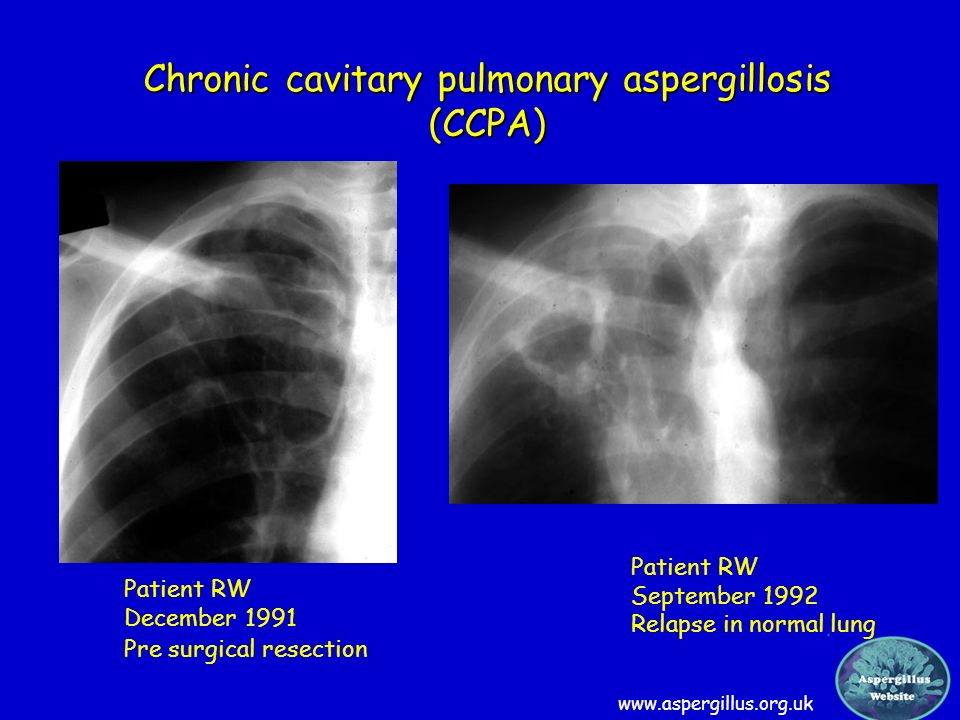 Chronic cavitary pulmonary aspergillosis (CCPA)