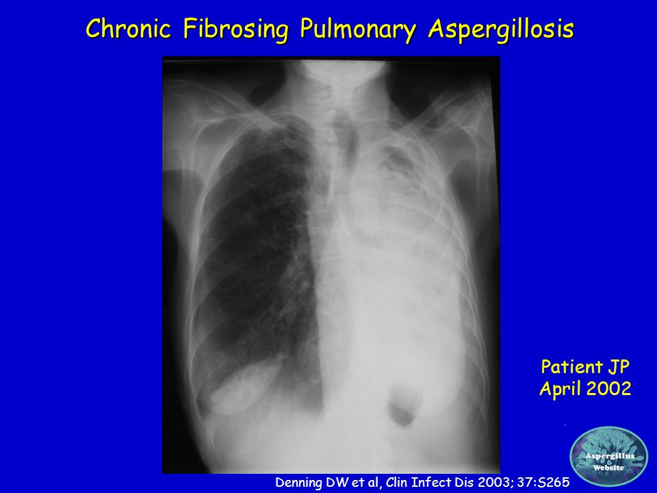 Chronic Fibrosing Pulmonary Aspergillosis