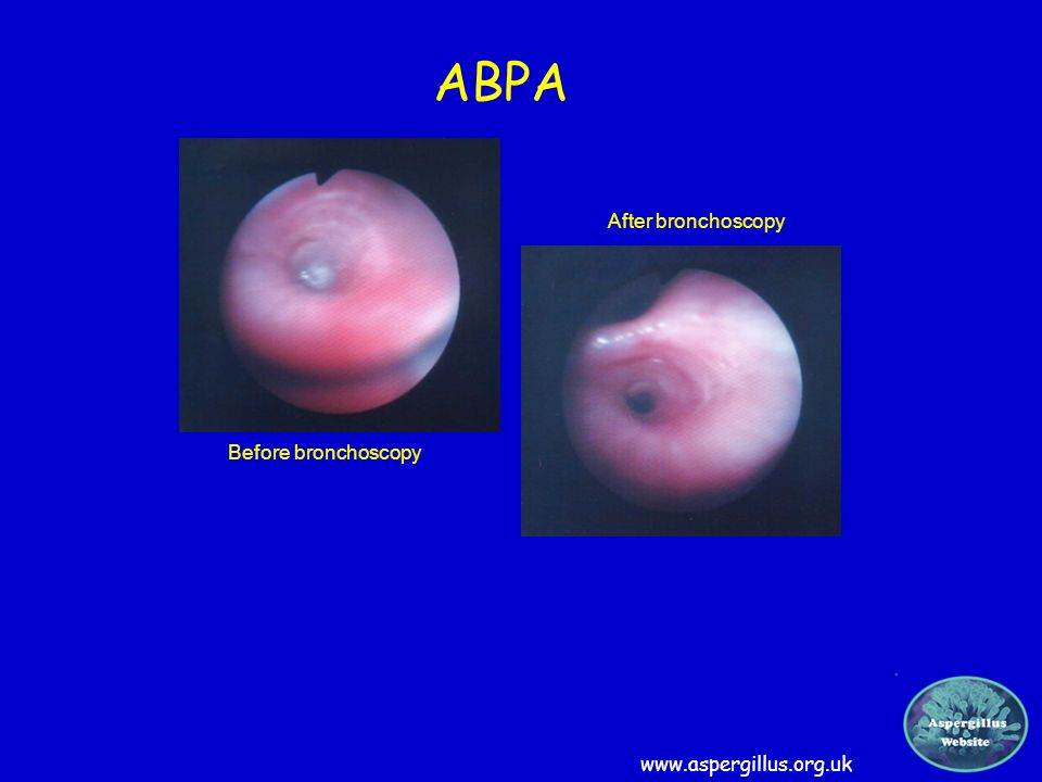 ABPA After bronchoscopy Before bronchoscopy www.aspergillus.org.uk