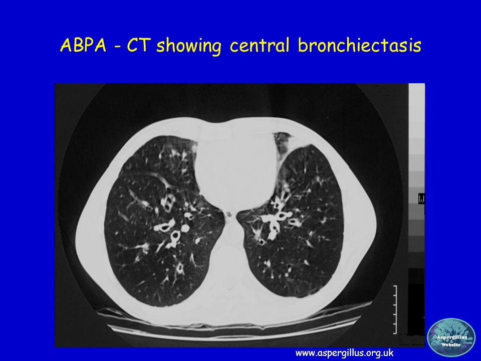 ABPA - CT showing central bronchiectasis