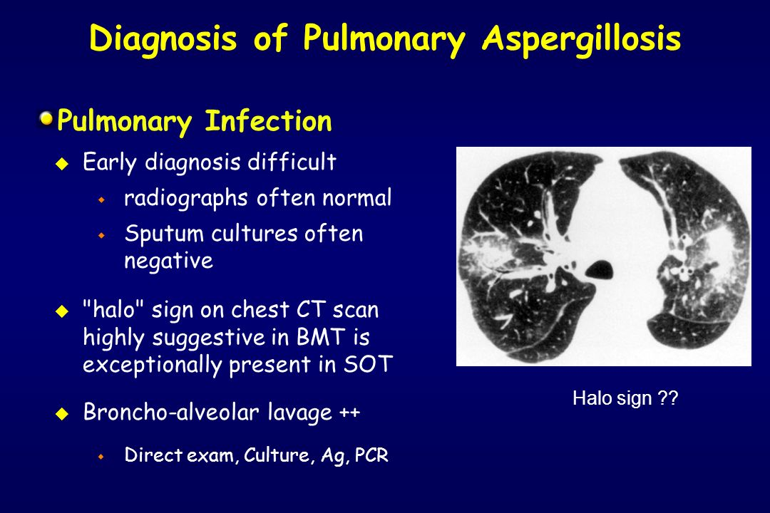 Diagnosis of Pulmonary Aspergillosis