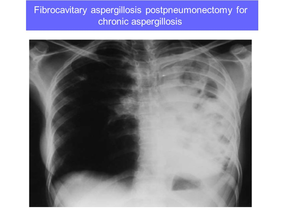 Fibrocavitary aspergillosis postpneumonectomy for