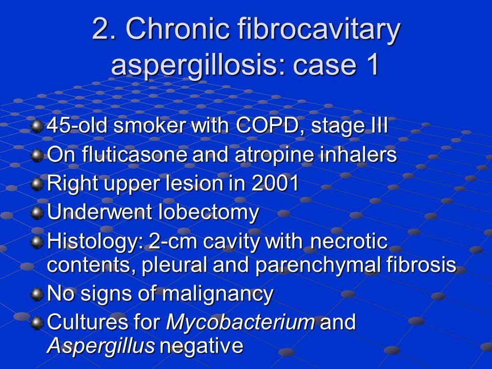 2. Chronic fibrocavitary aspergillosis: case 1