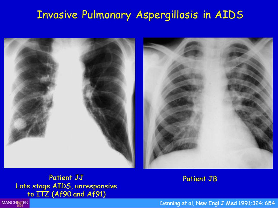 Invasive Pulmonary Aspergillosis in AIDS