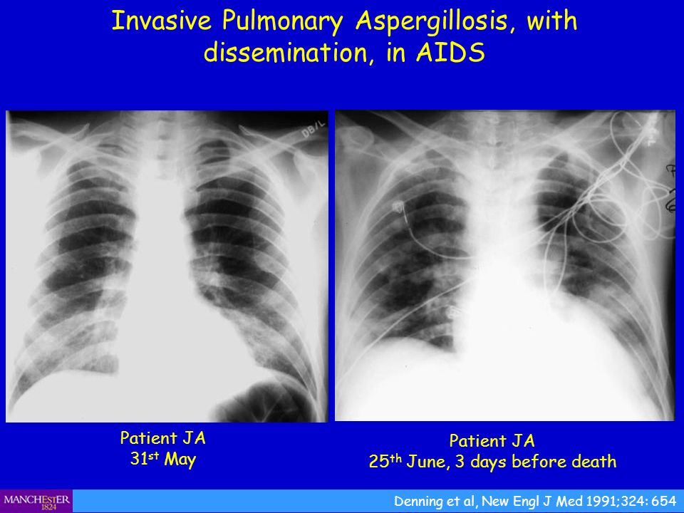 Invasive Pulmonary Aspergillosis, with dissemination, in AIDS