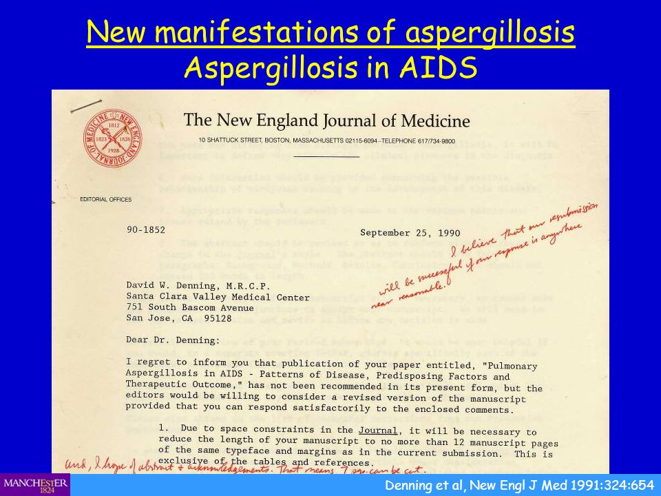 New manifestations of aspergillosis Aspergillosis in AIDS