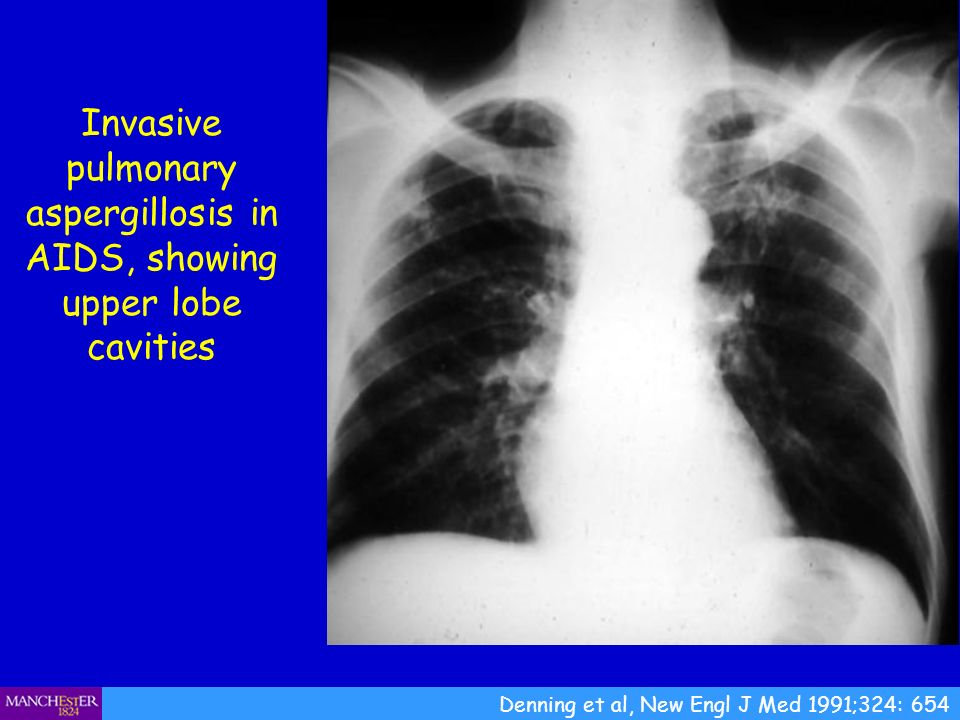 Invasive pulmonary aspergillosis in AIDS, showing upper lobe cavities