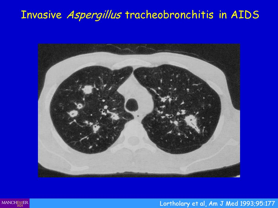 Invasive Aspergillus tracheobronchitis in AIDS
