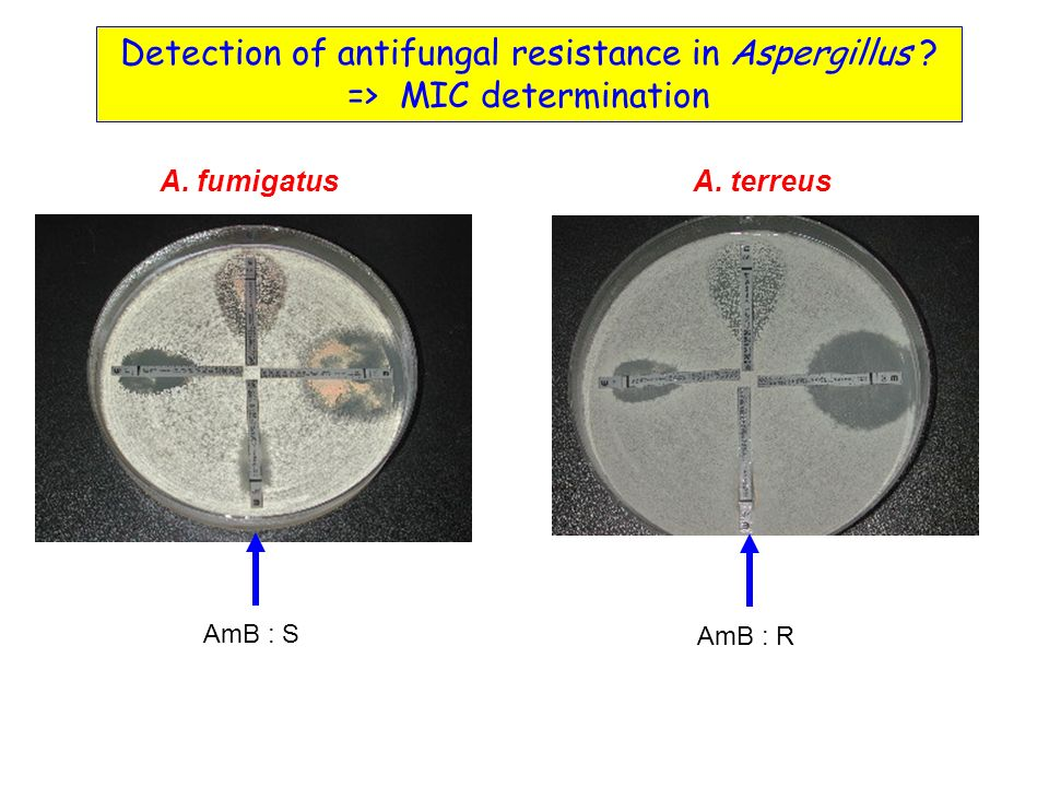 Detection of antifungal resistance in Aspergillus