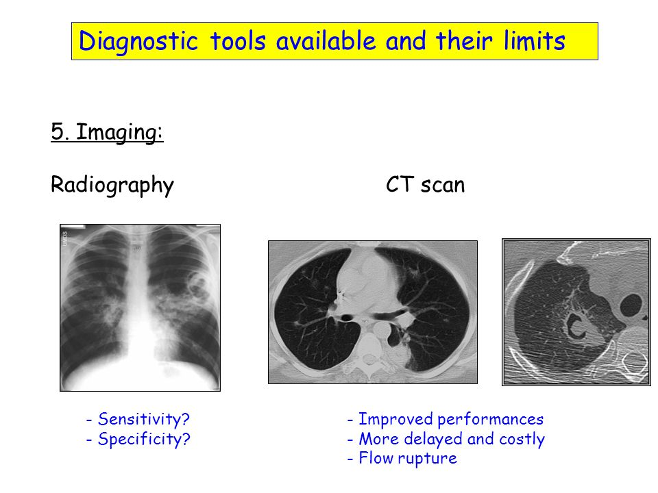 Diagnostic tools available and their limits