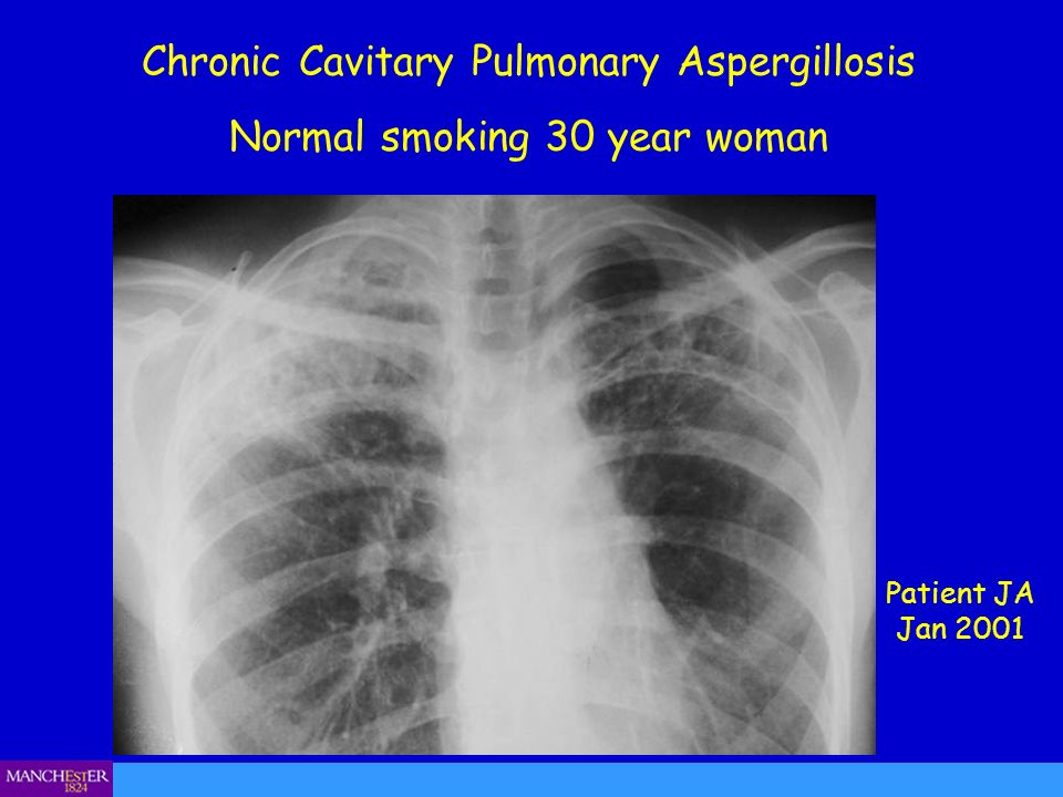 Chronic Cavitary Pulmonary Aspergillosis Normal smoking 30 year woman