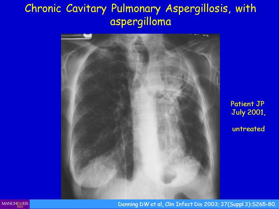 Chronic Cavitary Pulmonary Aspergillosis, with aspergilloma