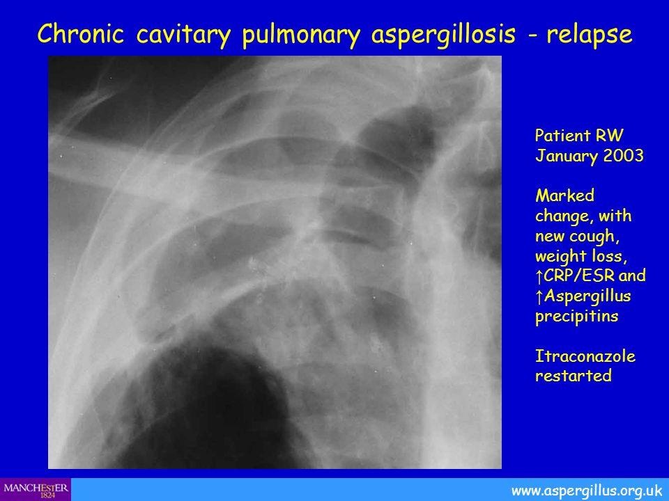 Chronic cavitary pulmonary aspergillosis - relapse