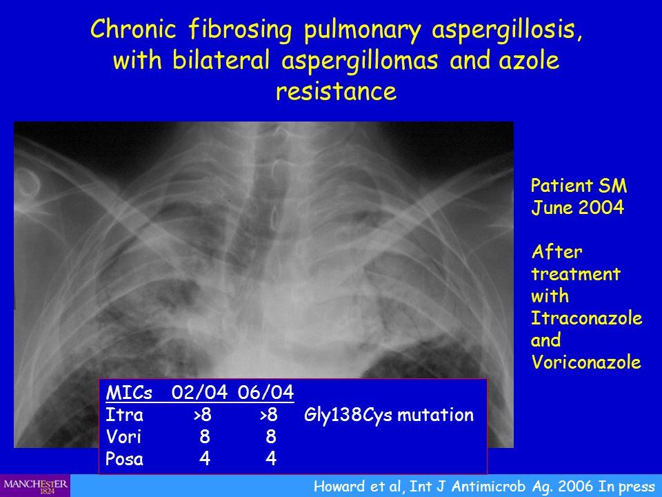 Chronic fibrosing pulmonary aspergillosis, with bilateral aspergillomas and azole resistance