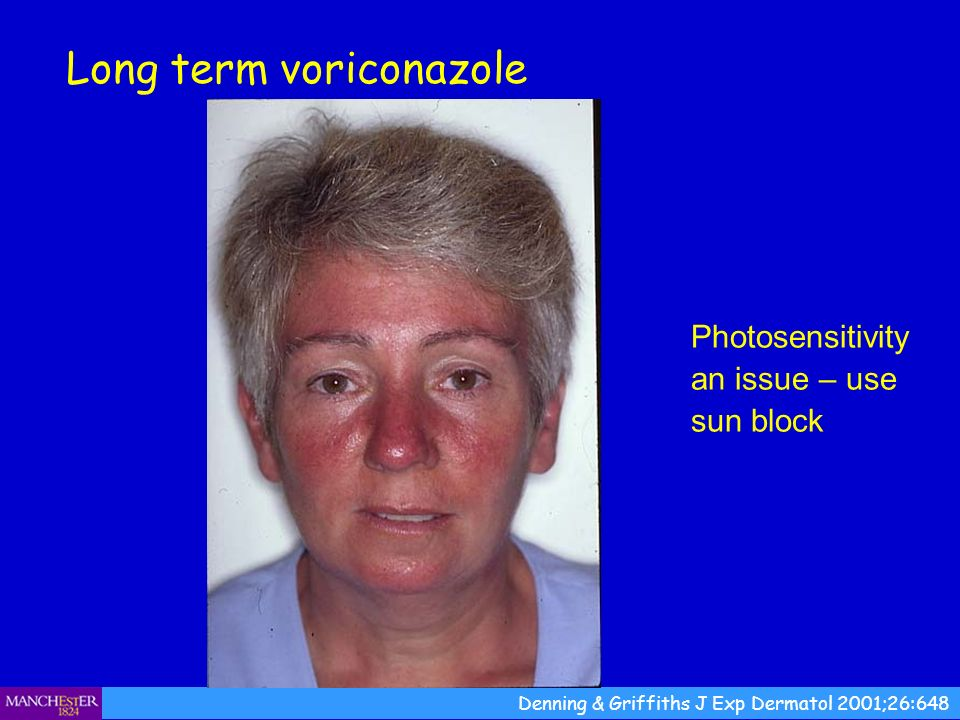 Photosensitivity an issue – use sun block