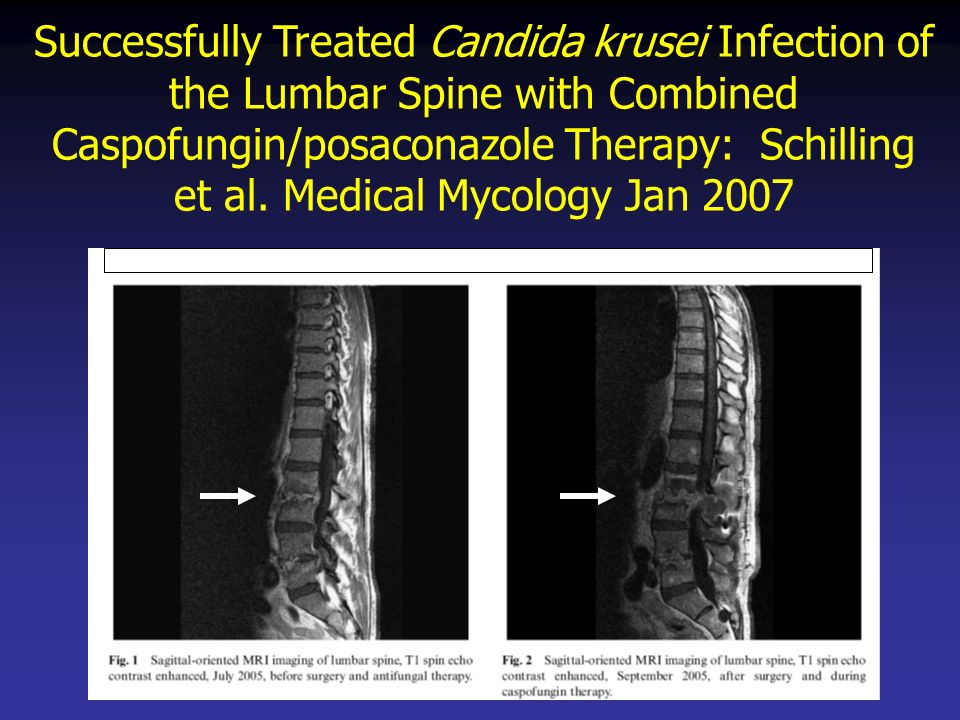 Successfully Treated Candida krusei Infection of the Lumbar Spine with Combined Caspofungin/posaconazole Therapy: Schilling et al. Medical Mycology Jan 2007