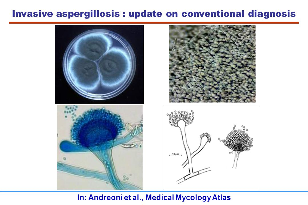 In: Andreoni et al., Medical Mycology Atlas